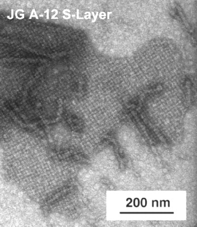 TEM micrograph of an S-Layer from JG-A12
